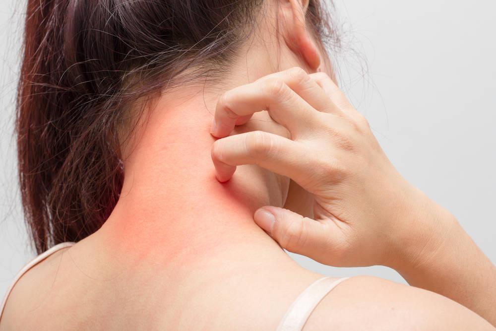 Conoce los síntomas de dermatitis atópica en niñ@s y bebés